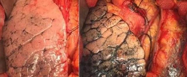 Phụ nữ dễ bị ung thư phổi vì nhạy cảm với khói thuốc
