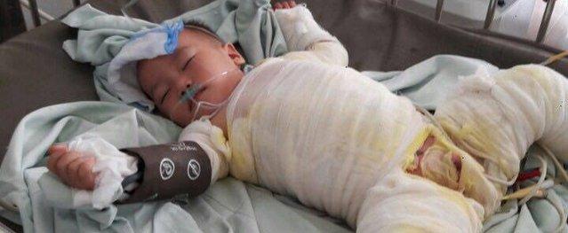 Bé bị bỏng nước sôi 20 tháng tuổi: Phẫu thuật lần 1 da tuột hết