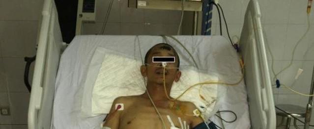 Hà Nội: Người đàn ông rơi tự do từ tầng 5 được cứu sống thần kỳ