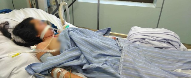 Một phụ nữ 24 tuổi đối mặt cửa tử do mắc viêm não mô cầu