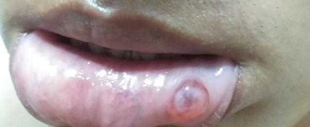 Nốt tròn trong suốt ở môi, bệnh gì?