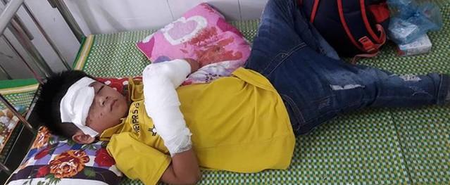 Cháu bé 7 tuổi bị nát bàn tay do nổ điện thoại