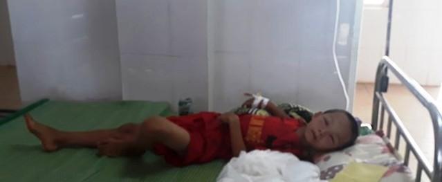 Bé trai lớp 3 bị ong vò vẽ đốt phải nhập viện cấp cứu