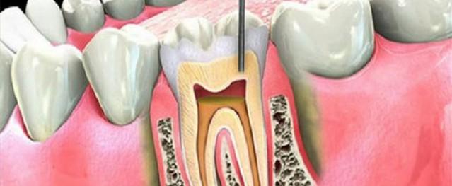 Khi nào cần điều trị viêm tủy răng?