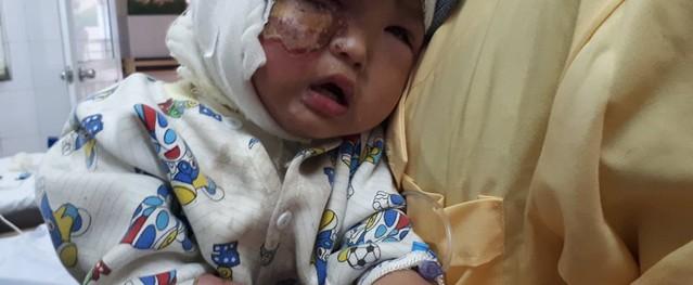 Bố đang nằm viện, bé 23 tháng tuổi ngã vào bếp lửa bị bỏng nặng khuôn mặt