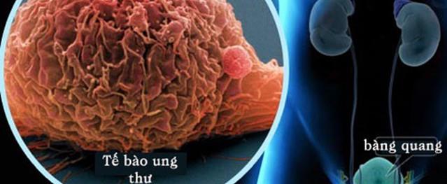 5 dấu hiệu cảnh báo ung thư đang tấn công cơ thể, rất hay bị nhầm lẫn với bệnh thông thường
