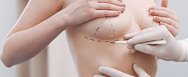 Nhìn hình ảnh biến chứng nâng ngực kinh dị này, những người dưới đây đừng nghĩ đến nâng ngực