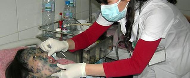 Lo ngại bùng phát dịch thủy đậu mùa đông xuân: Bệnh lành tính nhưng có thể gây biến chứng nặng