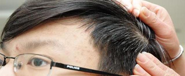 Món ăn bài thuốc chữa chứng tóc bạc sớm