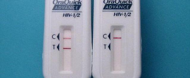 Thử HIV tại nhà, biết kết quả sau 20 phút