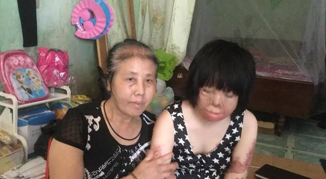 Cuộc sống cô gái bị chồng thiêu xăng mùng 2 Tết: Nỗi trăn trở tìm lại hình hài