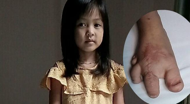 Nghẹn lòng bé gái 5 tuổi với ước mơ được... mặc quần dài