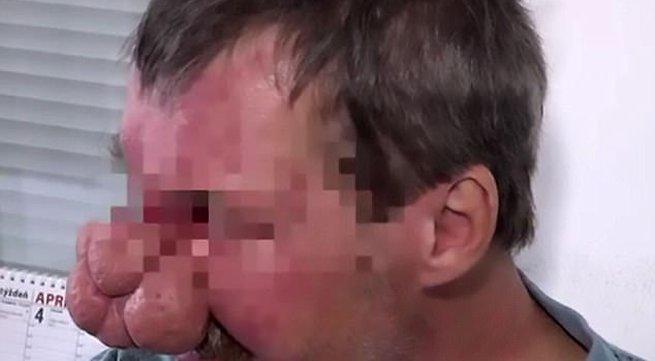 Người đàn ông bị bệnh mũi to nhất thế giới khiến nhiều người hoảng sợ