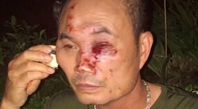 Một bảo vệ ở Linh Đàm bị đánh nhập viện