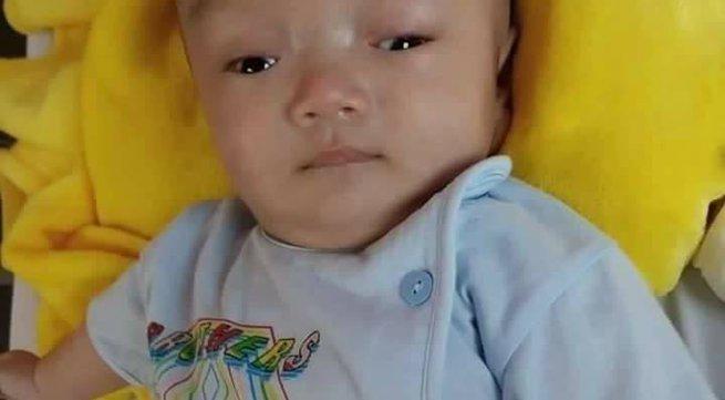 Rớt nước mắt hình ảnh bé trai 3 tháng tuổi bị não úng thủy