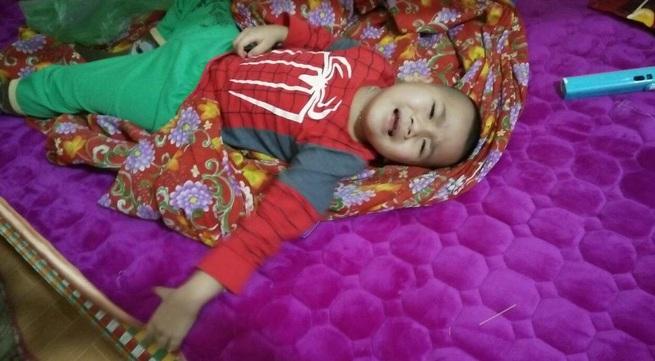 Nỗi sợ của người mẹ có con trai đang khỏe mạnh bỗng liệt 2 chân sau 7 ngày đau bụng
