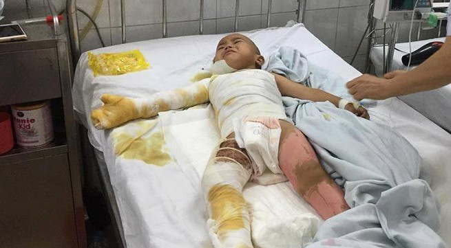 Nỗi đau tột cùng của cậu bé dân tộc bị bỏng nặng toàn thân
