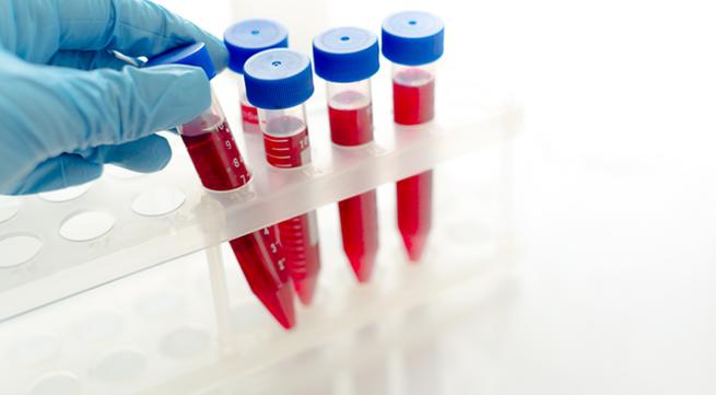 Nghi phạm dùng vật sắc nhọn đâm khiến 10 người phơi nhiễm HIV khai gì?