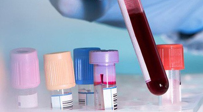 Phương pháp mới giúp phát hiện biến chứng tiểu đường nhanh và chính xác hơn