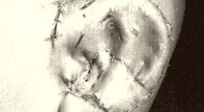 Phẫu thuật thành công kỹ thuật tạo hình tai nhỏ microtia tiên tiến nhất thế giới