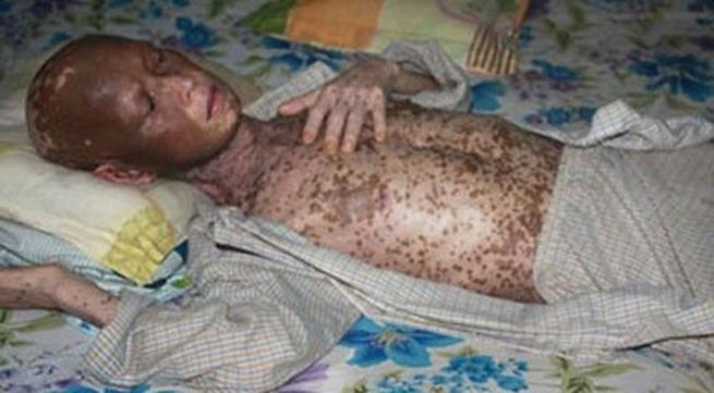 Thêm hình ảnh kinh hãi về giun lươn lúc nhúc dưới da