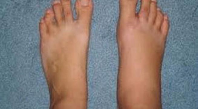 5 nguyên nhân gây phù bàn chân và mắt cá chân
