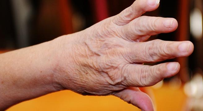 Biến dạng bàn tay do viêm khớp dạng thấp