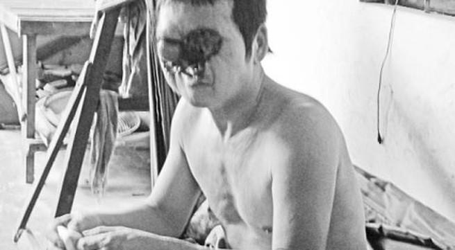 Mang 'mặt quỷ' vì phá mụn ruồi