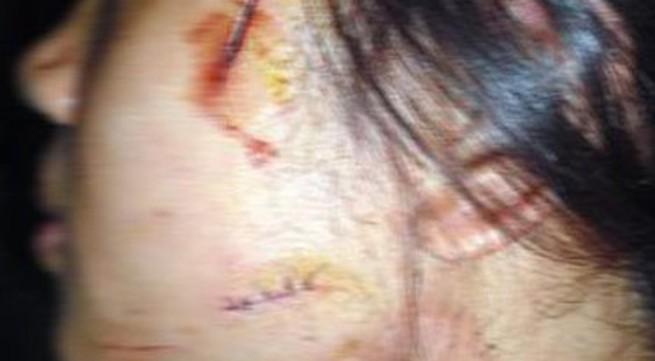 Rạch mặt vợ vì nghi bị 'cắm sừng'