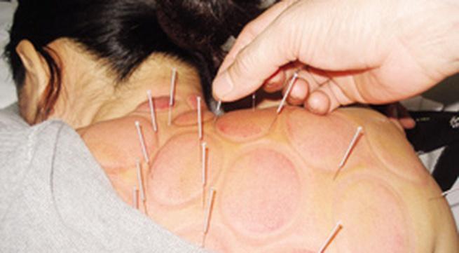 Chữa bệnh không dùng thuốc: Chữa đau cổ, vai, gáy