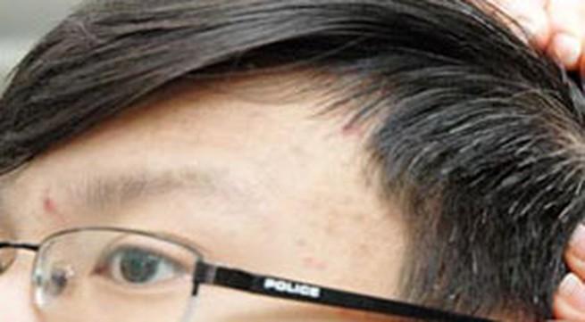 Vì sao tóc bạc sớm?