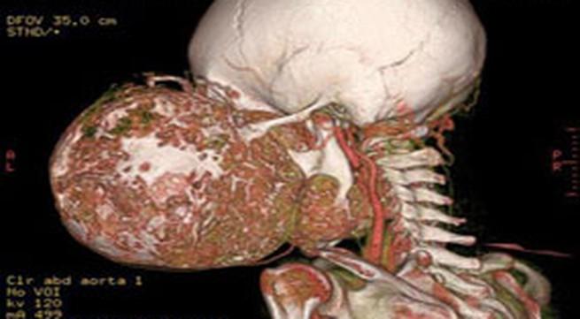 Bệnh viện K trung ương: Phẫu thuật thành công khối u kỳ lạ
