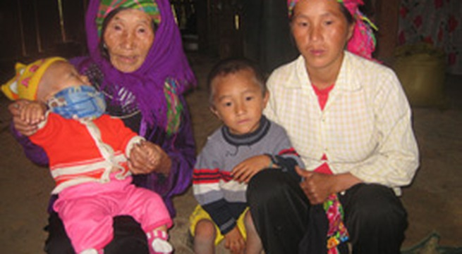 Hạn chế nạn tảo hôn, hôn nhân cận huyết (2): Xót xa con trẻ tật nguyền
