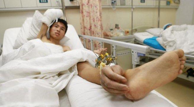 """Chàng trai có bàn tay phải """"mọc"""" ở chân"""