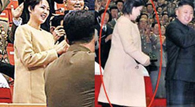 Vợ Kim Jong-un có thể đang mang thai
