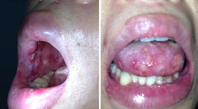 Viêm loét miệng - họng nghiêm trọng vì nhiễm... giun