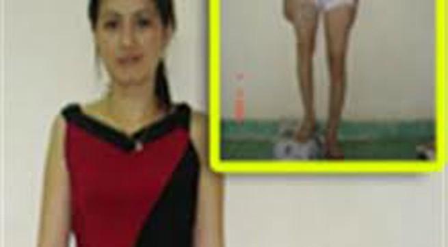 Chuyện cô giáo phẫu thuật kéo dài 12cm chân