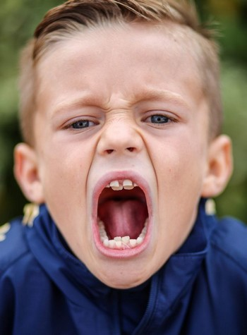 Cậu bé Zak Brown sở hữu đến 4 hàm răng