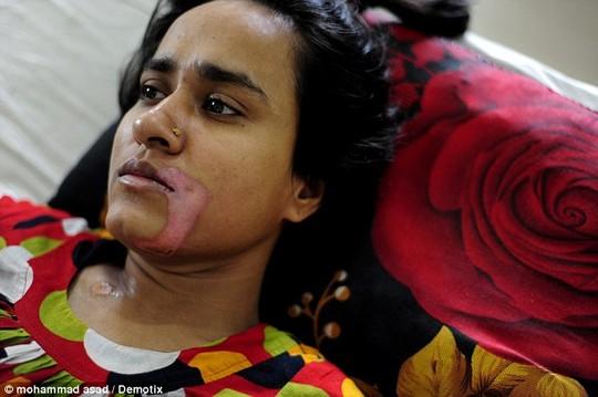Cô Ripa Rani Pandit mang vết sẹo vĩnh viễn trên khuôn mặt và những tổn thương nội tạng nghiêm trọng. Ảnh: Demotix