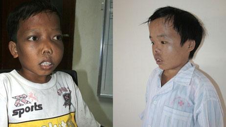 Các bệnh nhân mắc Thalassimia ở Việt Nam