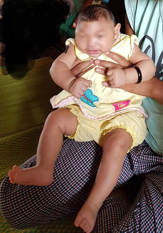 Bé gái 4 tháng tuổi ở Krông Búk, Đắk Lắk đã được xác định là mắc chứng đầu nhỏ. Ảnh: NLĐ