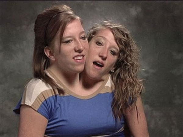 Cặp song sinh Abigail và Brittany Hensel. (Ảnh: Internet)