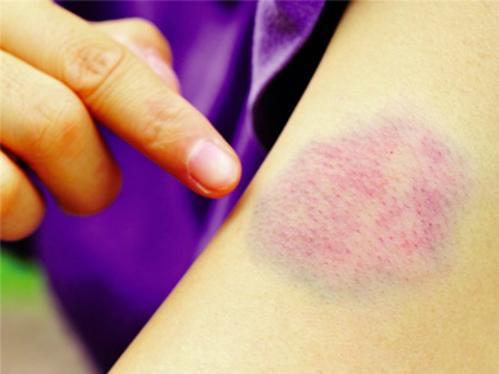 Dấu hiệu dễ nhận biết nhất của ung thư máu là những mảng bầm tím trên da. Ảnh: kienthuc.