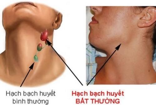 Hạch bạch huyết ở cổ sưng lên là một trong những dấu hiệu của ung thư máu. Ảnh:News.