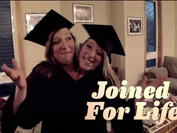 Tròn 22 tuổi, Abigail và Brittany Hensel hoàn toàn khỏe mạnh và xinh đẹp, đã tốt nghiệp trường Đại học Bethel ở Minnesota. (Ảnh: Internet)