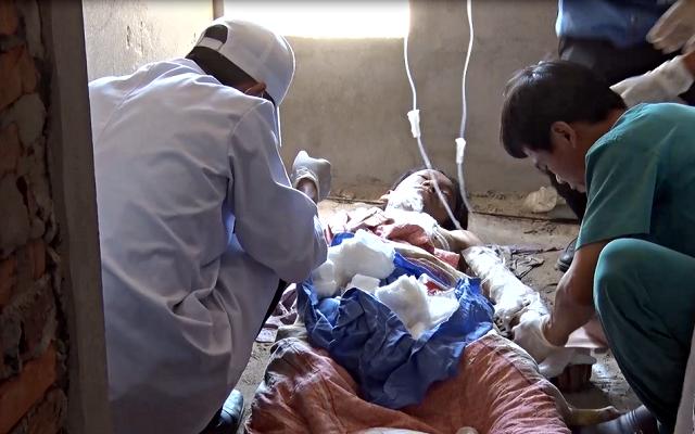 Một công nhân bị bỏng nặng do điện giật