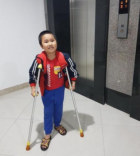 Sau hơn hai tháng điều trị, em Kiên đã tự đi bằng nạng. Ảnh GĐCC