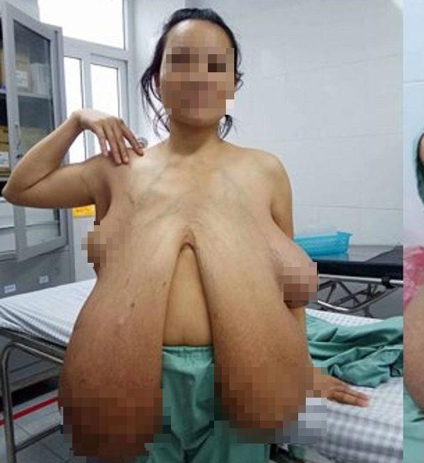 Bộ ngực khổng lồ của chị T. trước khi phẫu thuật.