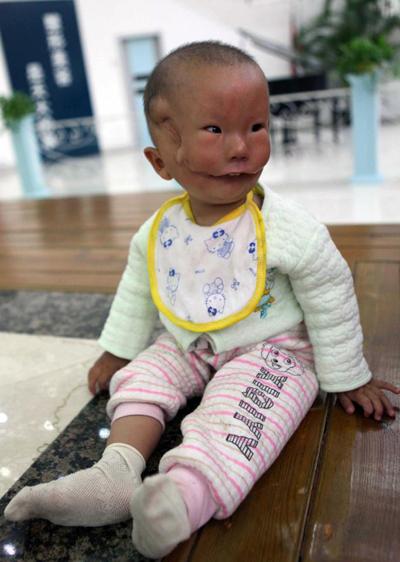 Huikang với gương mặt biến dị hồi năm 2010. Ảnh: CFP2010