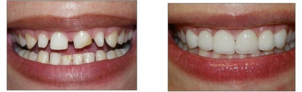 Trường hợp răng thưa có thể bọc răng sứ thẩm mỹ